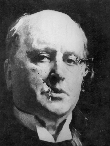 Henry James after a woman attacked portrait with a meat cleaver